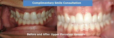Before and after upper porcelain veneers photo