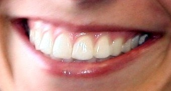 Picture of a beautiful smile to promote whitening services