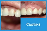 Picture of a Porcelain Crown Before and After