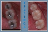 Picture of Amalgam and composite fillings
