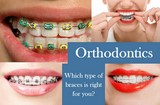 Collage of Pics from www.canstockphoto.com to show the different types of orthodontic braces.